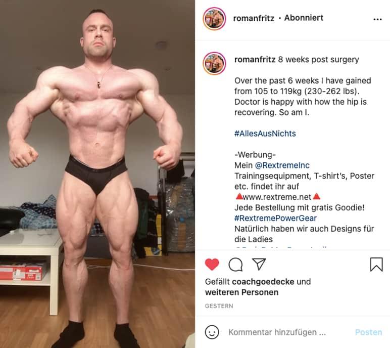 Instagram: Roman Fritz zeigt seine aktuelle Form 8 Wochen Post-OP