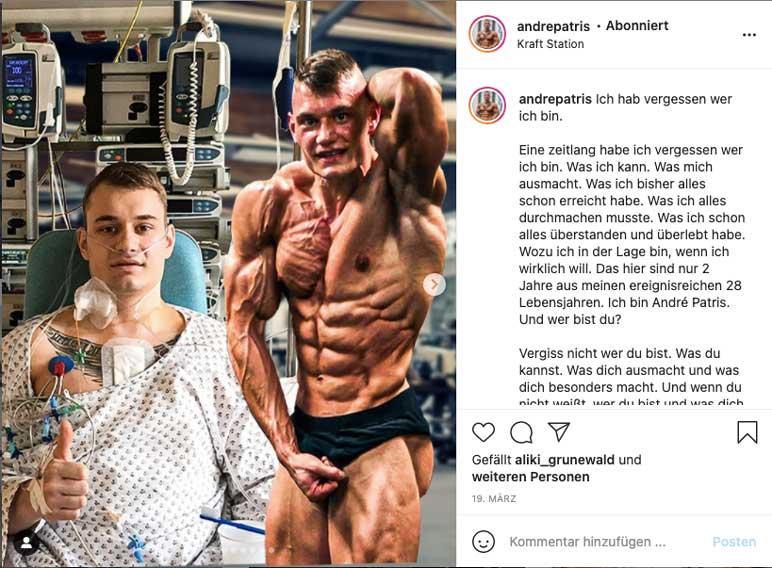 Instagram: Andre Patris zeigt seine Transformation