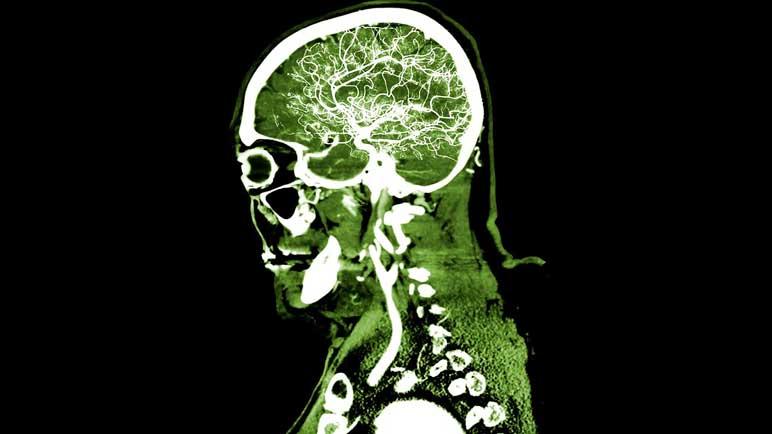 Bild: Ein Abbild vom Gehirn des 25-Jährigen nach dem Konsum des Boosters.